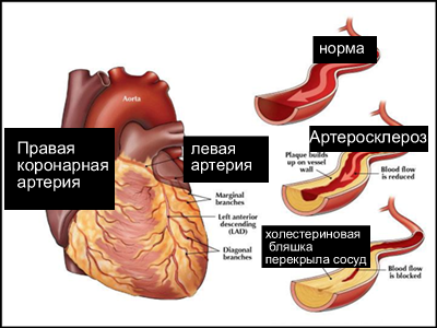 Нестенозирующий атеросклероз сосудов головного мозга лечение