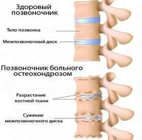 Остеохондроз шейного позвонка | Симптомы шейного остеохондроза